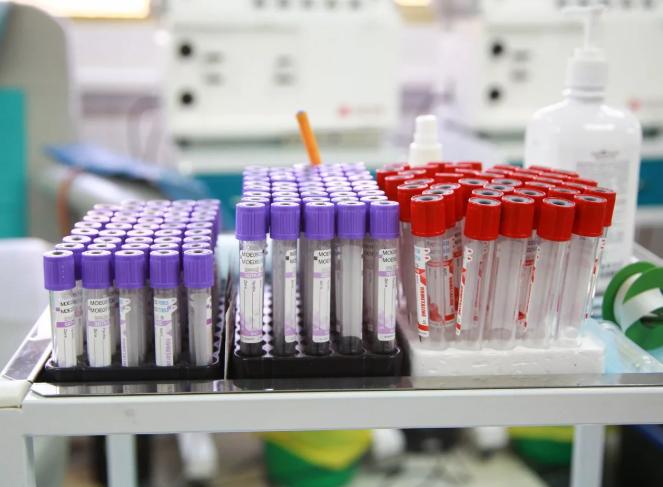 Кыргызстанда коронавирусту жапырт текшерүү лабораториясы иштеп баштайт