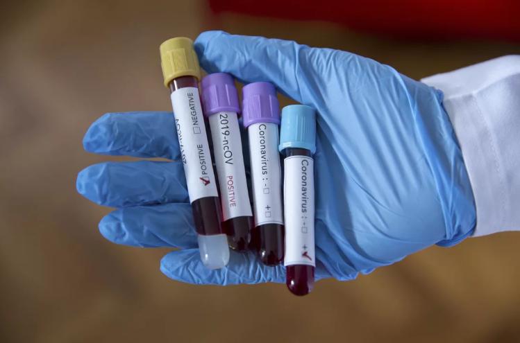 5-апрелде дагы үч адам коронавирус жуктуруп алды. Үчөө тең Бишкектен