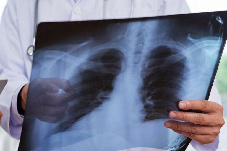 Үч күн ичинде пневмониядан 43 бейтап каза болгон